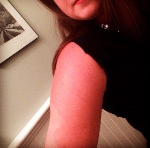Tan Lines  (Also, for those of you worried I was THIS red, I was not. I used an instagram filter to accentuate the difference.)